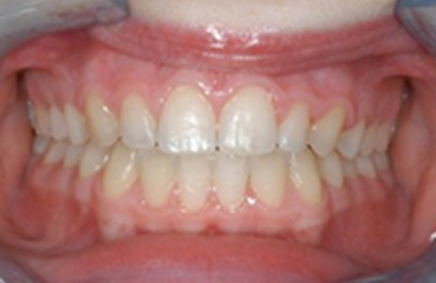 Frontal Intraoral Photo After Resized