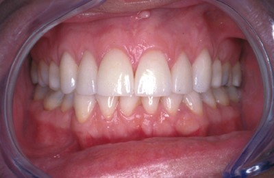 Porcelain Veneers Rob Proudmouth After
