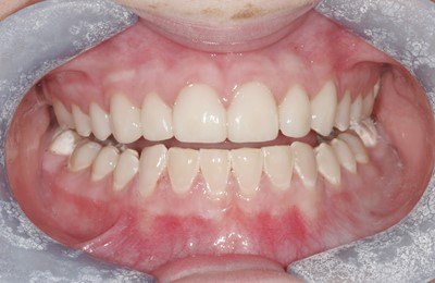 Composite And Porcelain Veeners After