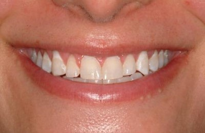 Veneers 1 Before